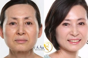 Nhờ liệu pháp căng da mặt bằng chỉ S Soft, khuôn mặt chị em đã có những thay đổi đáng ngạc nhiên.