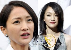 Sau độ tuổi 30 trở đi, da mặt sẽ bắt đầu xuất hiện nhiều dấu hiệu của sự lão hóa da mặt.