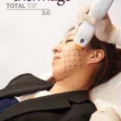 Căng da mặt không phẫu thuật bằng Ultherapy